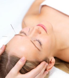 Acupuncture treatment for Migraine guildford surrey