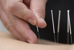 back pain &acupuncture