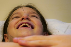 treating children with acupuncure guildford surrey
