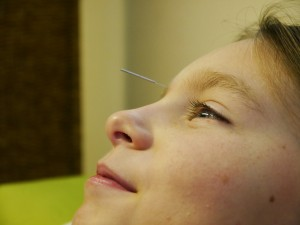 Acupuncture treatment for stress