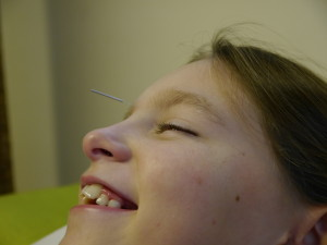 asthma treated with acupuncture